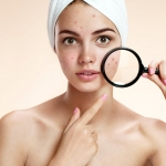 Kaip rūpintis spuoguota oda? (I dalis)