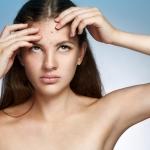 Kaip rūpintis spuoguota oda? (II dalis)